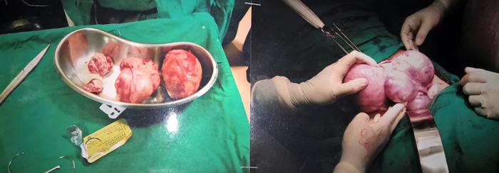 Breast Removal and Reconstruction when Fibroid Cysts
