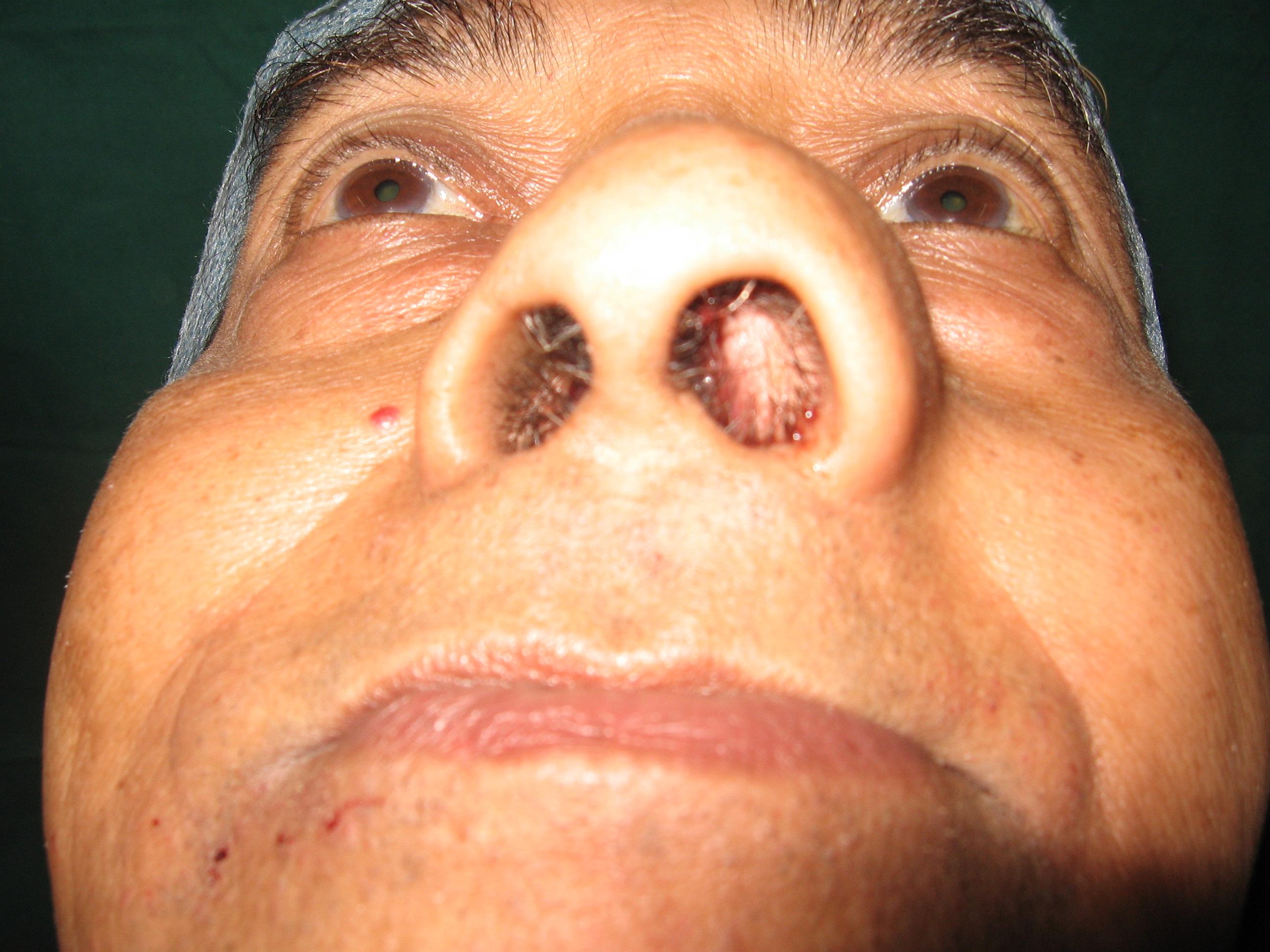 Facial reconstruction nasal tumor