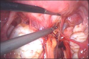 Dr Sankar Dasmahapatra Endometriosis Treatment In