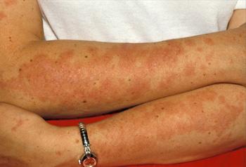 dr vikash kapoor  rheumatic diseases in kolkata
