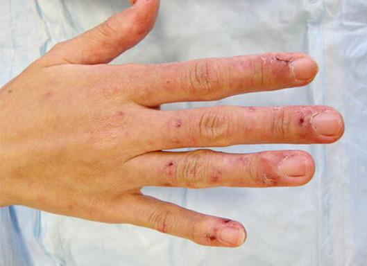 Best Orthopedic Journals | Rheumatology and Orthopedic ...