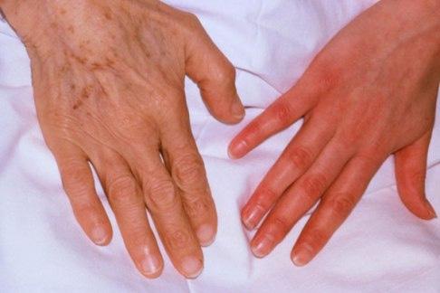::Dr. Anupam Chakrapani :: Aplastic Anemia Treatment in