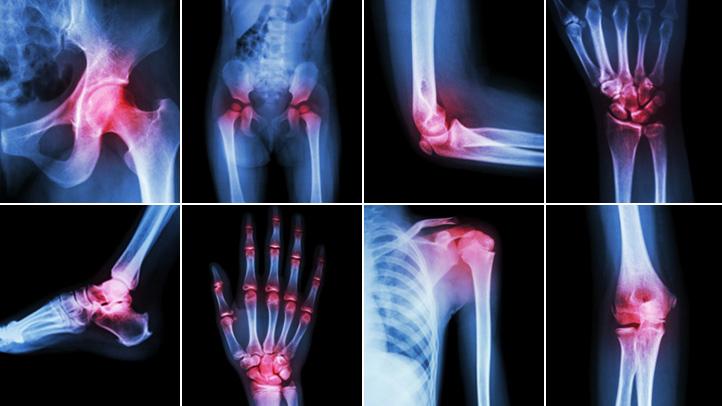 Rheumatology | Oxford Academic