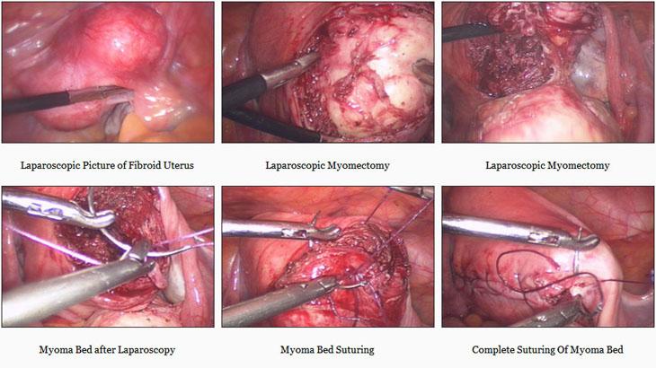 Dr Sankar Dasmahapatra Myomectomy Surgery